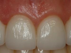 ejemplo-corono-disilicato-dental-navarro