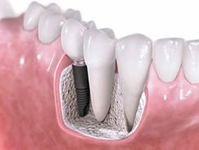 dentistas navarro