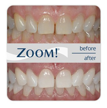 Blanqueamiento dental Zoom en Bordonclinic