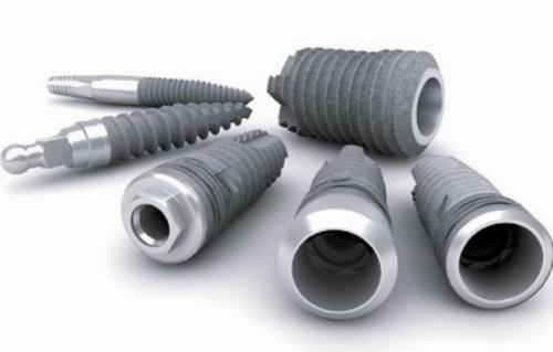 Implantes dentales y tiempos de curación