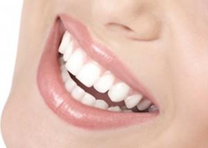 Dentista en las Rozas: carillas dentales de última generación