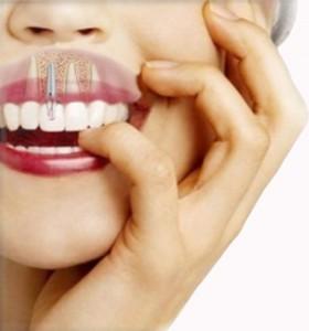Implantes dentales: Decálogo de un implante de calidad