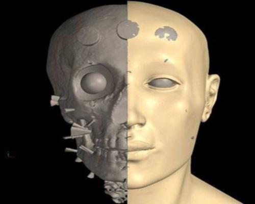 región maxilofacial