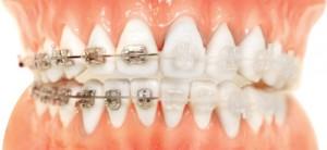 ortodoncia tradicional vs zafiro