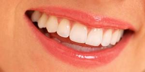 Implantes dentales en Leon