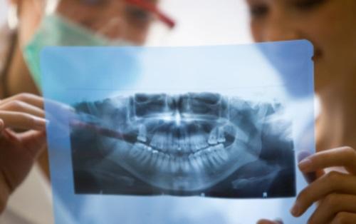 Implantes dentales; planificación
