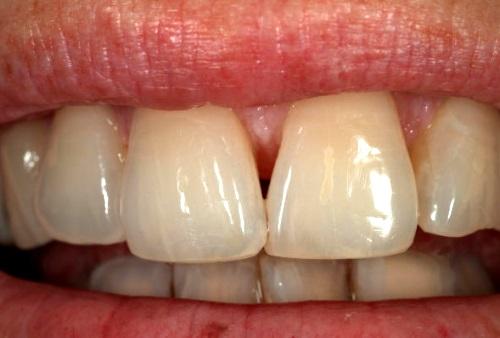 tratamiento de raíces dentales