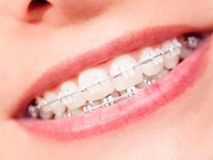 Ortodoncia en Madrid centro cuida y mejora tu sonrisa