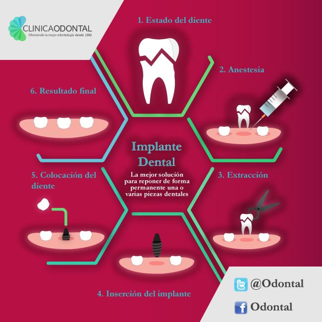 Infografia_ImplantesDentales