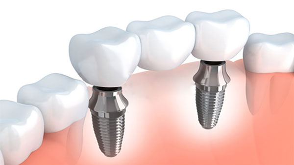 implantes-dentales-en-madrid-centro